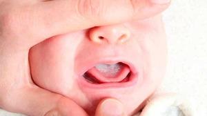 Сода при молочнице у мужчин и женщин как применять как лечить кандидоз