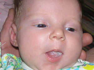 Фото языка у грудного ребенка 60