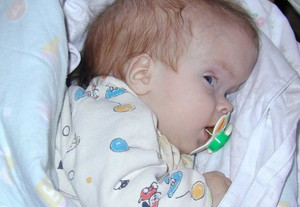 Что такое водянка у новорожденных
