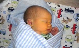 Как проявляется желтуха у новорожденных