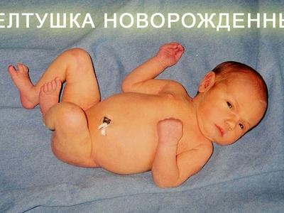 Как долго может быть желтушка у новорожденных