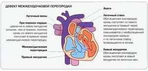 Признаки порока сердца