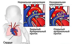 Причины порока сердца