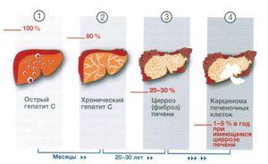 Заболевание гепатит