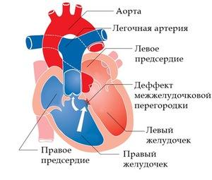 Патологии в работе сердца