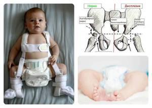 Изображение - Дисплазия суставов у новорожденных ребенка displaziya-u-grudnichkov