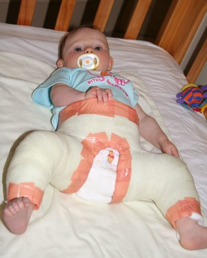 Изображение - Дисплазия суставов у новорожденных ребенка prichiny-vozniknoveniya-displaziya-tazobedrennyh-sustavov