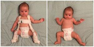 Изображение - Дисплазия суставов у новорожденных ребенка disploziya-tazobedrennyh-sustavov-u-rebenka-prichiny-i-lechenie