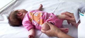 Изображение - Дисплазия суставов у новорожденных ребенка foto5lfkpridisplaziitazobedrennyhsustavovudeteytretiy