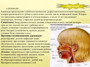 Как проводится операция по удалению уденоидов