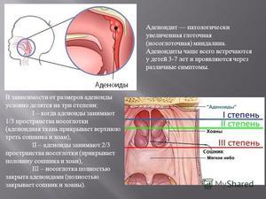 Как проводится операция