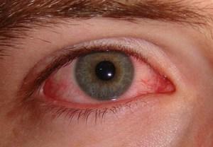 Симптомы коньюктивита  - что это за болезнь