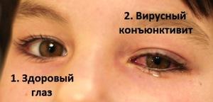 Как выглядит конъюнктивит на глазах