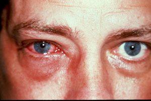 Вирусный конъюнктивит-причины