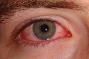 Конъюктивит у детей: симптомы
