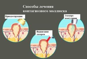 Моллюск на коже у ребенка: пути заражения и симптомы заболевания, удаление вирусных узелков на теле, моллюск кожа ребенок тело лечение контагиозный