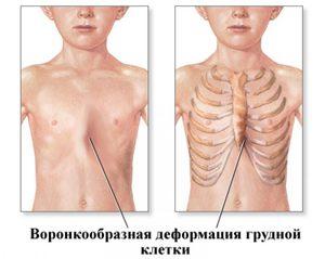 Можно ли делать рентген при беременности на ранних и поздних сроках