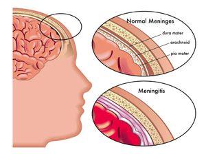 Какие симптомы у минингита