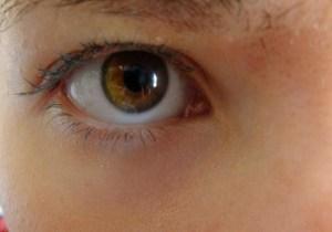 Как лечить желтизну глаз