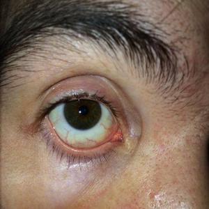 Пятна на белке глаза
