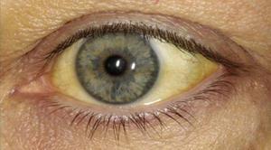 Как лечить желтые глаза