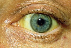 Причины желтых глаз