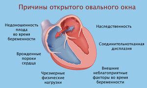 Овальное окно в сердце у новорожденного