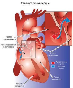 Овальное окно и решение проблем с работой сердца