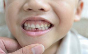 Уздечка верхней губы у детей