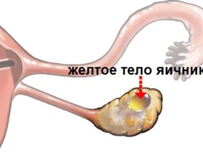 Что такое желтое тело в гинекологии: его размер по дням цикла и после овуляции, что значит кистозное желтое тело в яичнике