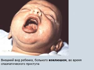 Как возникает заболевание коклюш