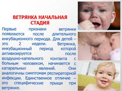 Ветрянка у детей – симптомы и лечение