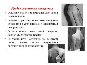 лечение мышечного гипотонуса
