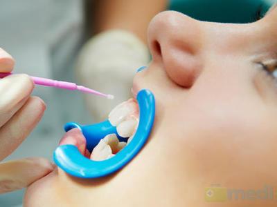 Особенности фторирования зубов у детей: плюсы и минусы, способы, цена
