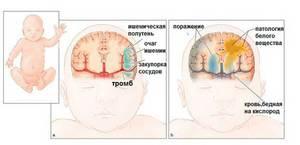 Как лечить детей от ишемии