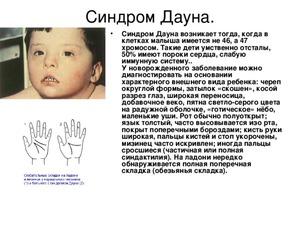 Прыщи у новорожденных 55