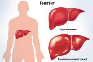 Заболевание гепатитом
