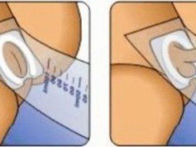 Как собрать мочу у грудничка: девочки и мальчика? Чем собрать мочу у новорожденного? Применение мочеприемника