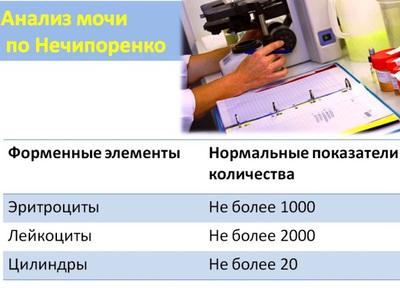 Как правильно собирать анализ мочи по Нечипоренко