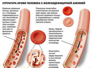Как понять, что гемоглобин повышен