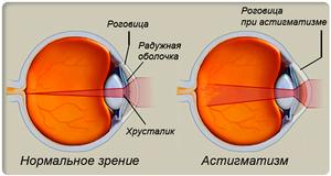 Причины астигматизма