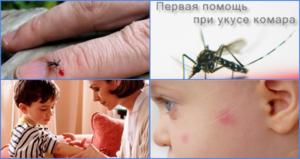 Какими мазями мазать укусы комарей