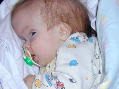 Гидроцефалия головного мозга у детей причины симптомы лечение