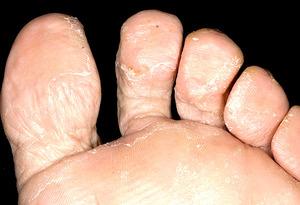 Микоз на стопах ног
