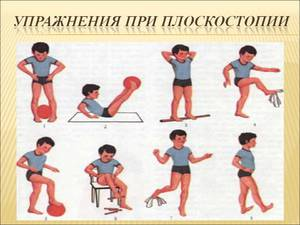 Как лечить плоскостопие у детей
